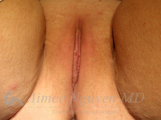 Labiaplasty After