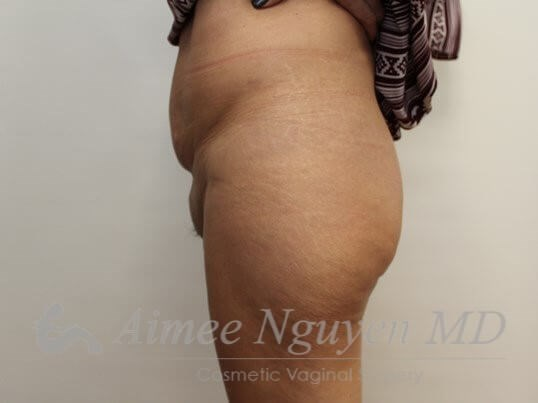 Pubic lift & Liposuction Before
