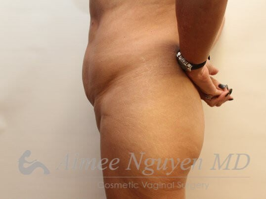 Pubic lift & Liposuction After
