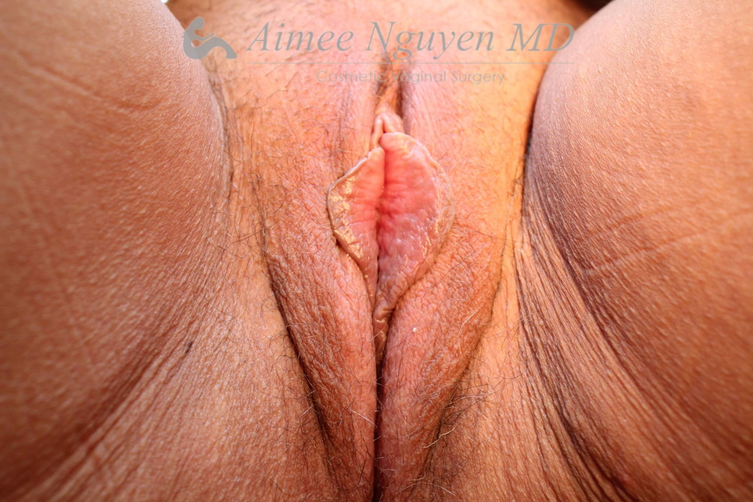 Labiaplasty Majora & Minora Before