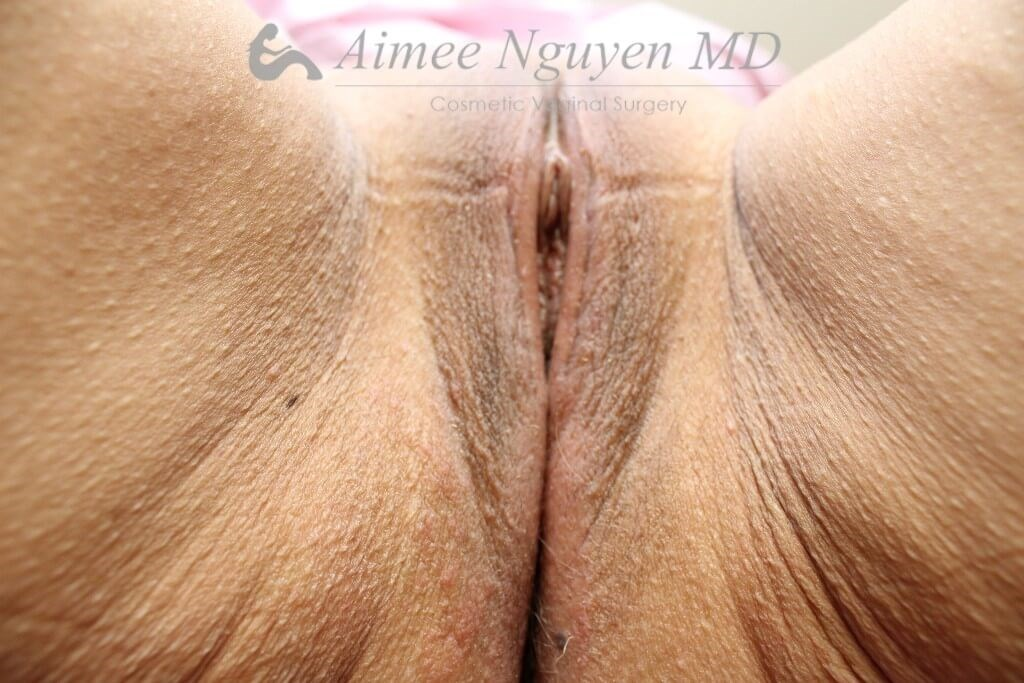 Labiaplasty Majora & Minora After