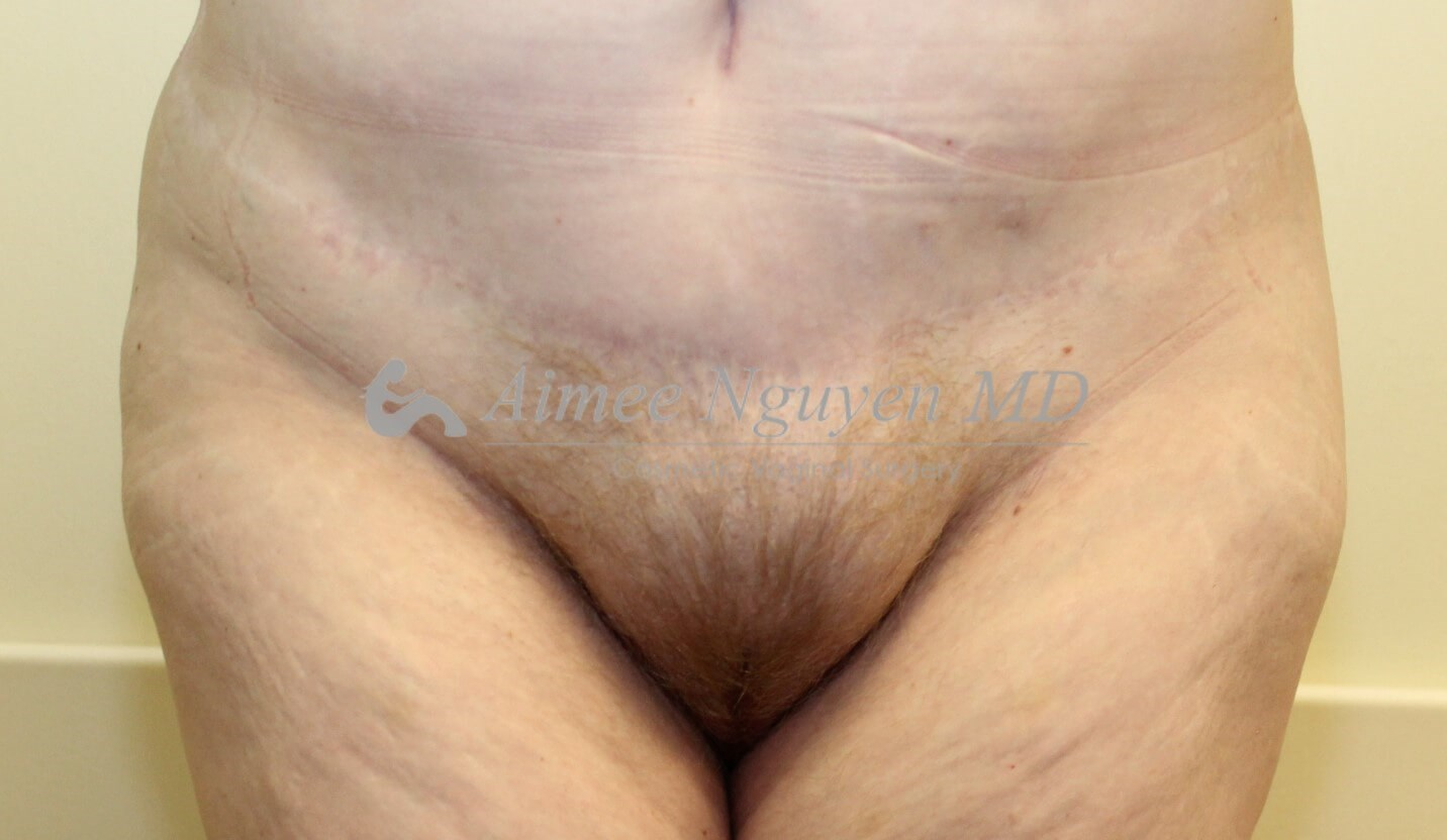 Pubic Liposuction Before