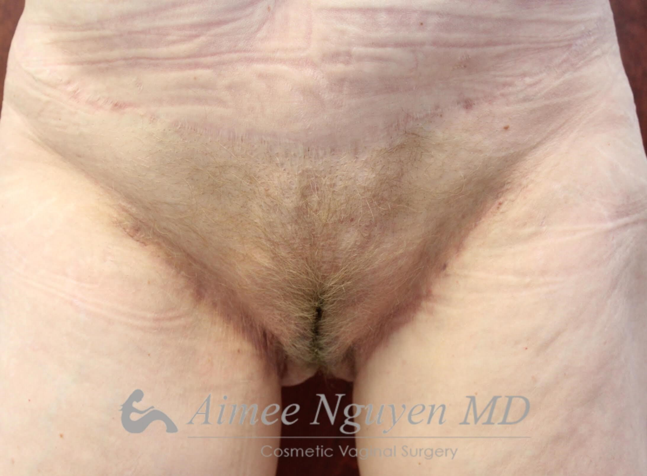 Pubic Liposuction After