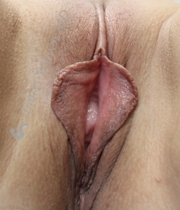 Labiaplasty, Vaginoplasty Before