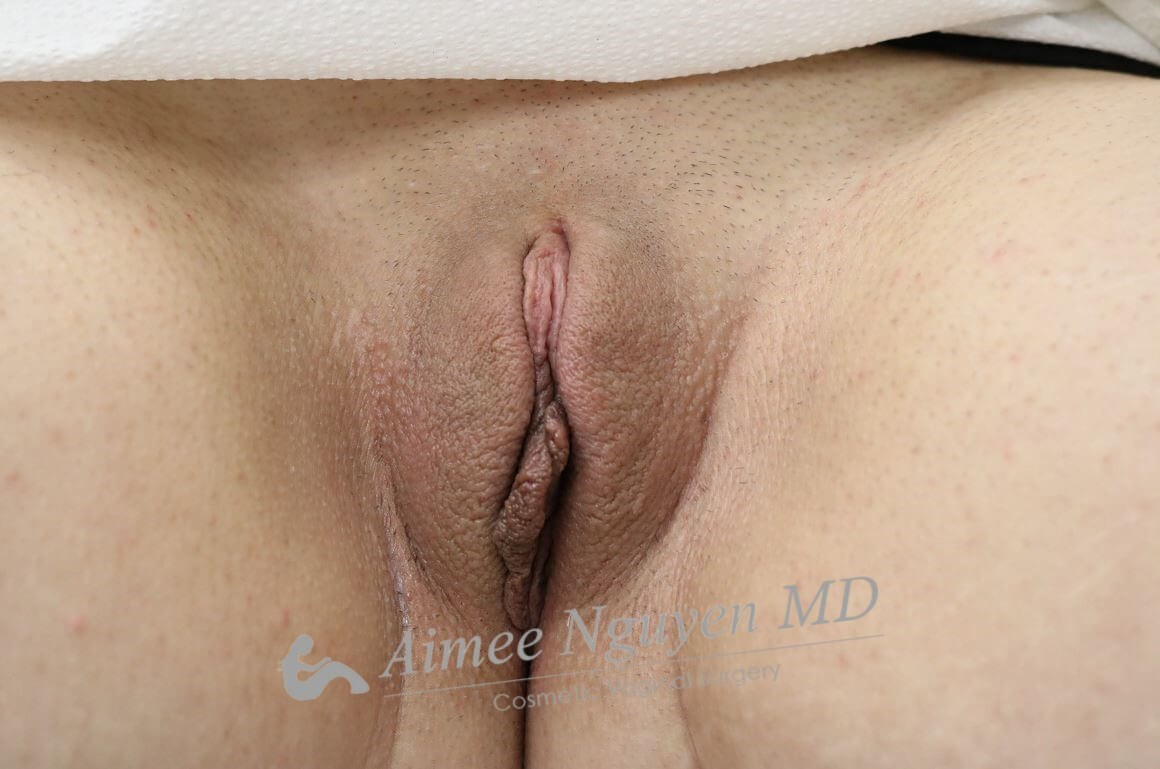 Juliet Vaginal Rejuvenation After