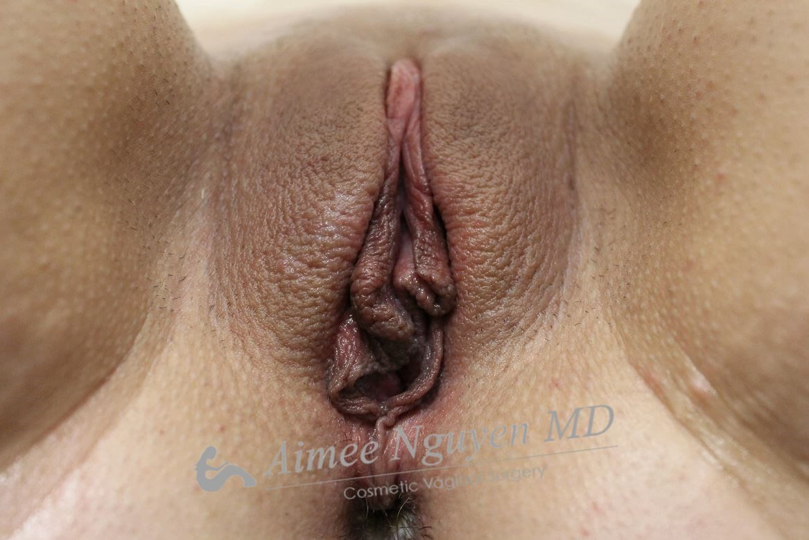 Juliet Vaginal Rejuvenation Before