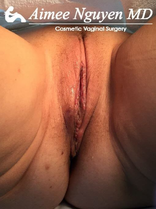 Labiaplasty, Vaginoplasty After