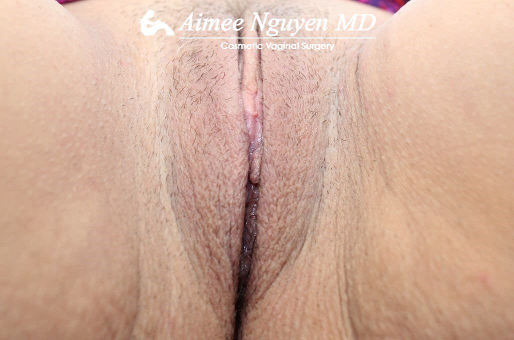 Labiaplasty Minora After