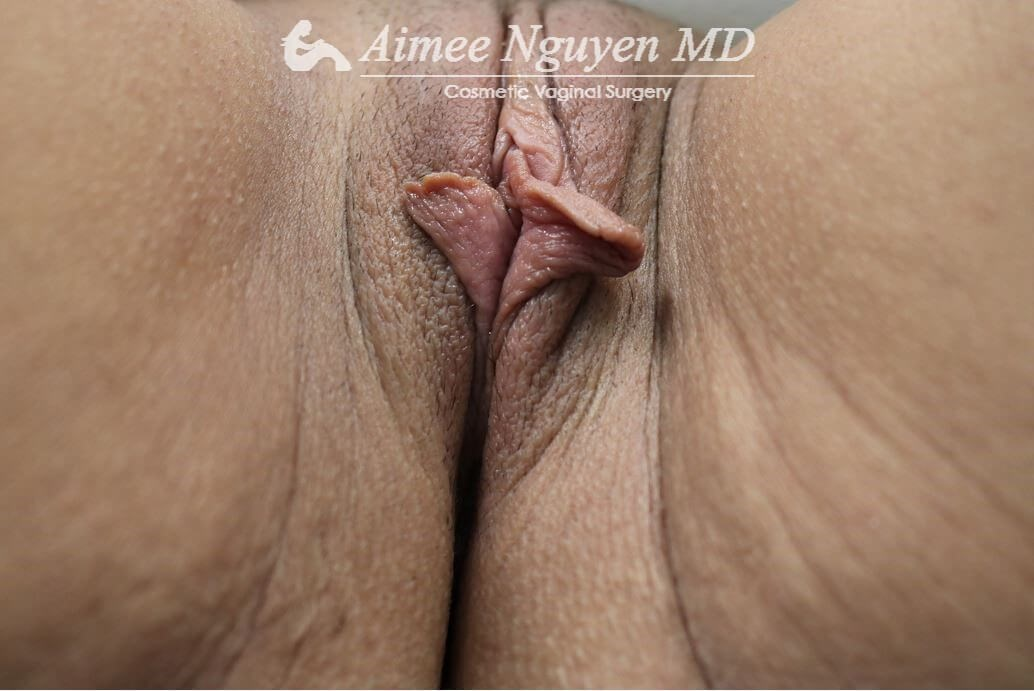 Labiaplasty Minora Before