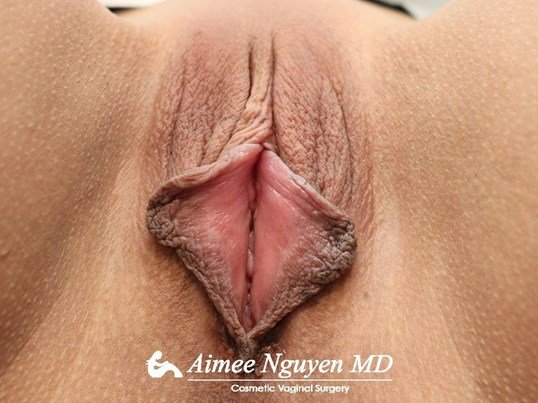 Labiaplasty Majora/Minora Before