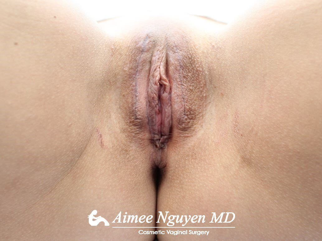 Labiaplasty Majora/Minora After
